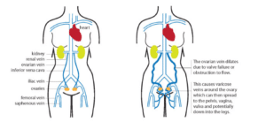 Pelvic Congestion Syndrome